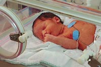 Picture of a baby in the neonatal intensive care unit